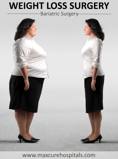 Best procedure for weight loss in Hyderabad, Best Hospital in Hyderabad